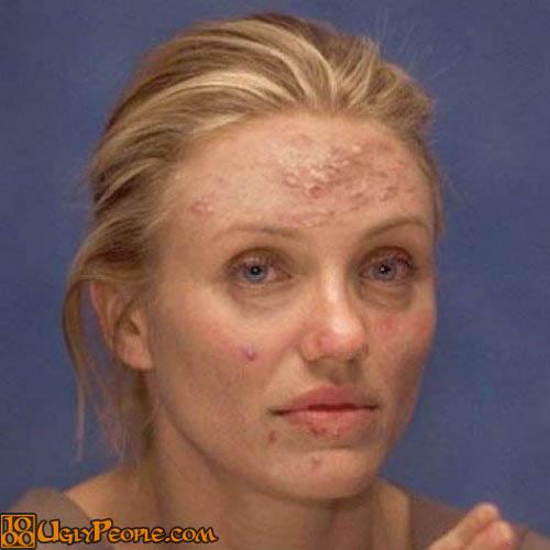 Cameron Diaz Have Pimples